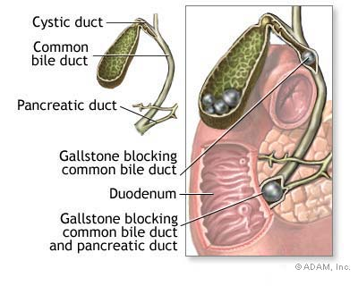 cholysystitis